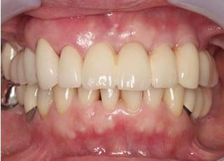 こいわ歯科クリニックインプラント1