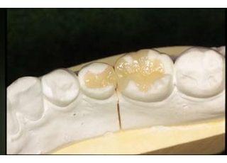 こいわ歯科クリニックセレック3