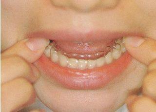 たけち歯科クリニック マウスピース矯正