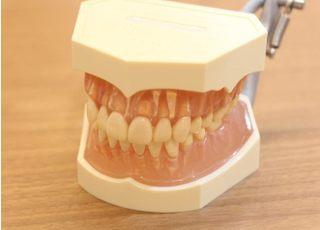 志木オハナ歯科クリニック_見た目に配慮した治療3