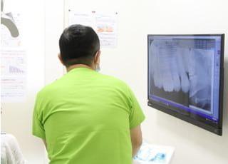 しのざき歯科クリニック歯周病3