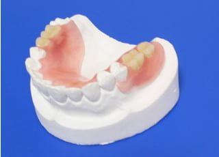 おがわ歯科_入れ歯・義歯2