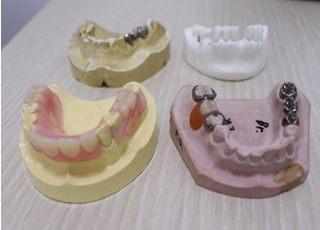 義川歯科医院_入れ歯・義歯について