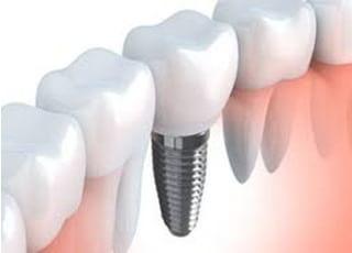 さとう歯科医院インプラント1