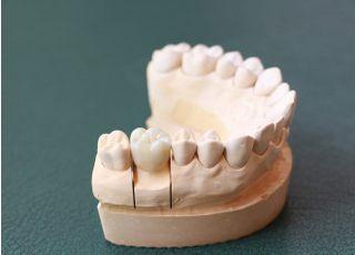 海谷歯科医院被せ物・詰め物3