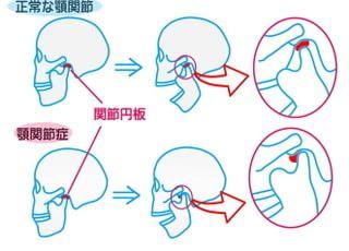 コアラ歯科_顎関節症4