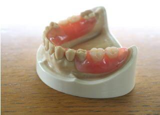 ながた歯科(熊本県合志市須屋駅付近)_入れ歯・義歯2