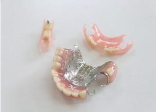 かねだ歯科医院_入れ歯・義歯3