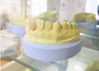 さかた歯科医院_つめ物・かぶせ物4