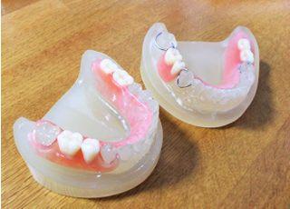 さかた歯科医院_入れ歯・義歯3