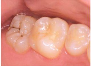 敬天堂歯科サウスクリニック_保険診療:虫歯の治療11