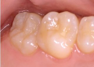 敬天堂歯科サウスクリニック_保険診療:虫歯の治療22