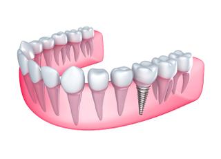 スマイル歯科医院_インプラント2