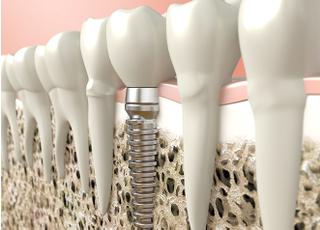 ささき歯科クリニック_特徴4
