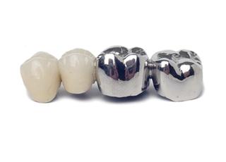 坂東歯科医院_ブリッジ2