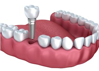 にがたけホワイト歯科_インプラント1