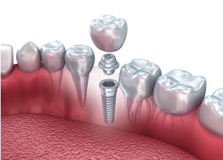 サンデー歯科クリニック_インプラント1