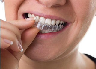 スマイル歯科医院_マウスピース矯正1