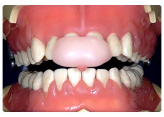亀楽町通クリニック 歯科_顎関節症4