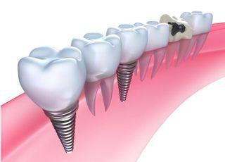 二日町歯科クリニックインプラント1