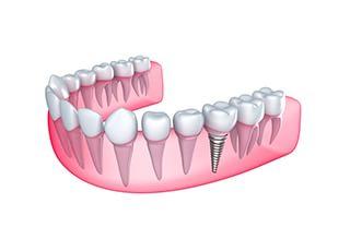 ざいもくちょう歯科 インプラント