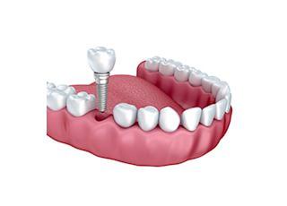 いいづか歯科_インプラント2