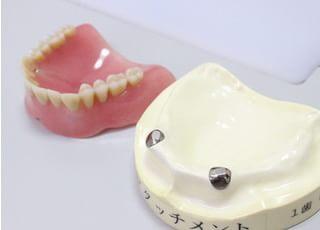 稲垣歯科 入れ歯・義歯