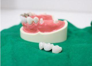 木村歯科医院_治療後の状態を維持し、患者さまにご納得いただくために