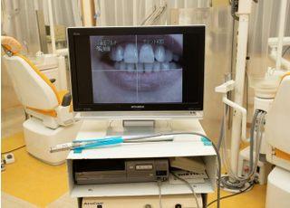 内田歯科医院_治療の事前説明1