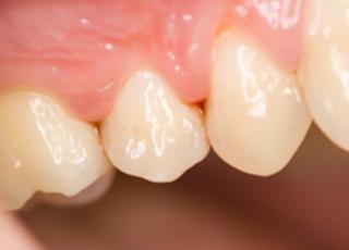 西大通歯科クリニック知覚過敏4