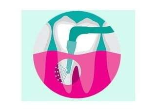 デンタルクリニックK歯周病2