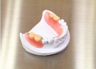 グレースデンタルクリニック多摩分院_入れ歯・義歯4