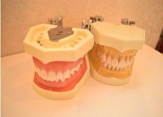 小松歯科医院 入れ歯・義歯