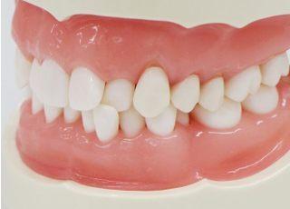 こんどう歯科医院_予防歯科3