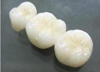 仙北坂歯科クリニック被せ物・詰め物2
