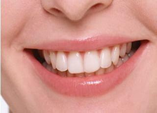 仙北坂歯科クリニックホワイトニング3