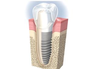 仙北坂歯科クリニックインプラント1