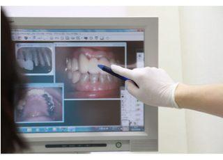 あおば歯科医院予防歯科1