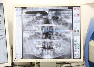 歯の状態を詳しく説明させていただきます。