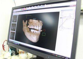 たかはし歯科_設備や技術について2