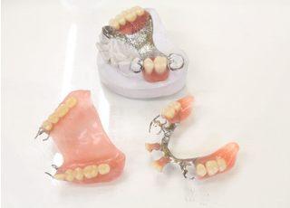 布施歯科医院_入れ歯・義歯4