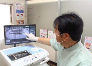 山下歯科医院_インプラント2