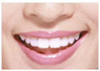 三谷歯科診療所_ホワイトニング4