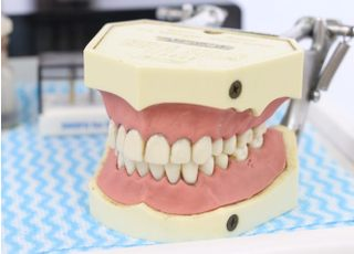 田中歯科医院_虫歯4