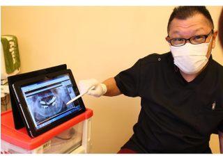 ながしま歯科クリニック入れ歯・義歯3
