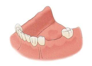 たむら歯科_歯を失ってしまった方への治療