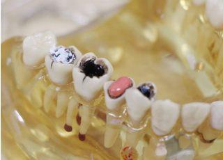 なかの歯科医院_虫歯2