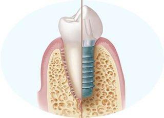 内丸歯科クリニックインプラント3
