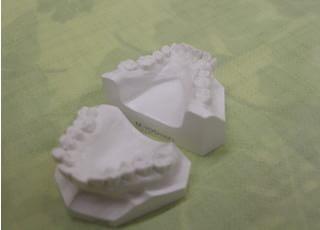 月島矯正歯科治療の事前説明1