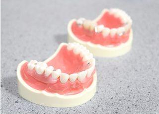 松下歯科医院_入れ歯・義歯4